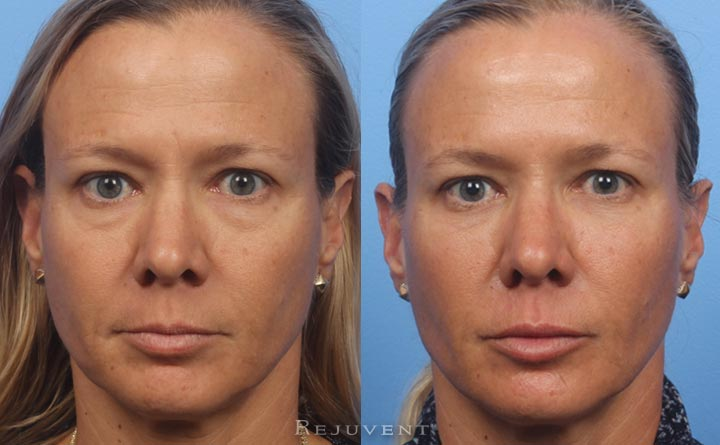 Refreshed and youthful Liquid Facelift Results Front