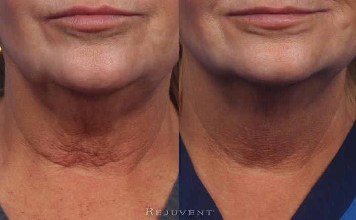 Neck rejuvenation with Dysport