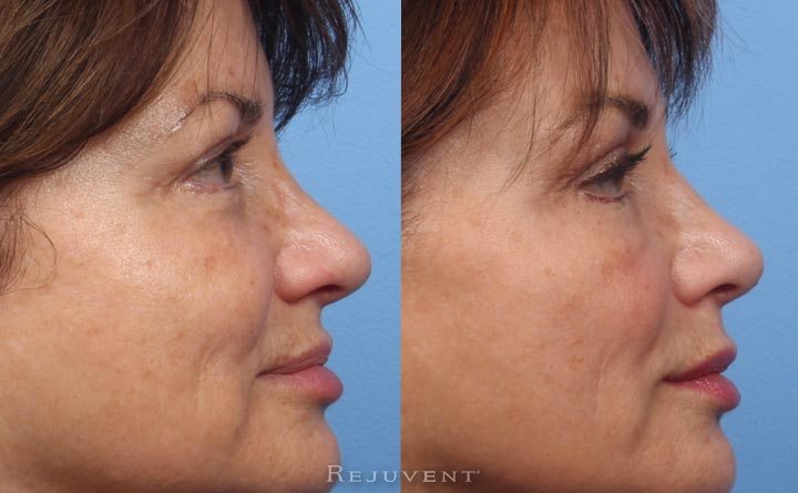 Beautiful results with Non-Surgical nose filler