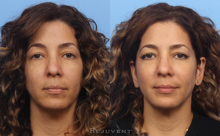 Non surgical nose job and Liquid Facelift with dermal fillers