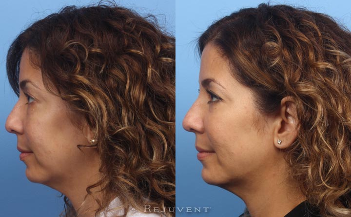 Non-surgical chin augmentation, nose filler and Liquid Facelift