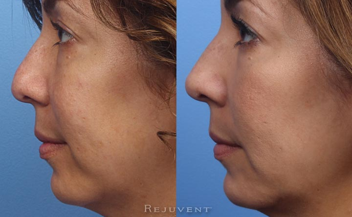 Non surgical nose job with dermal fillers