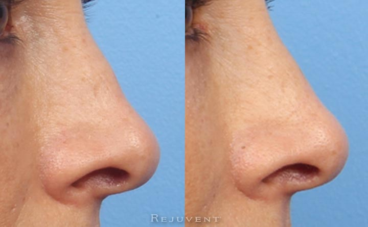 Great results on non-surgical nose enhancement with fillers