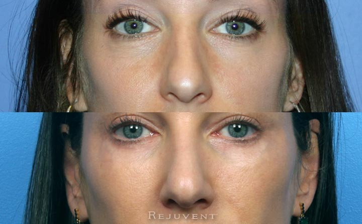 Non-Surgical Beautiful Results with Nose Filler