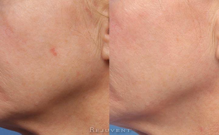 Chemical Peel spot treatment to remove keratotic spot