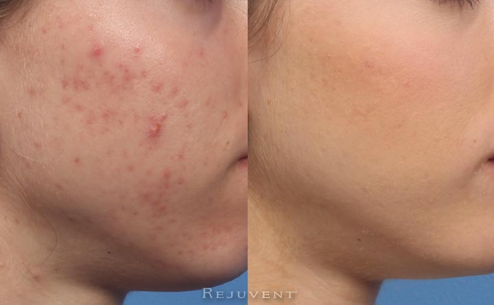 Acne and acne scars can be treated