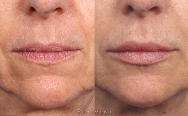 aging lips rejuvenated dermal filler