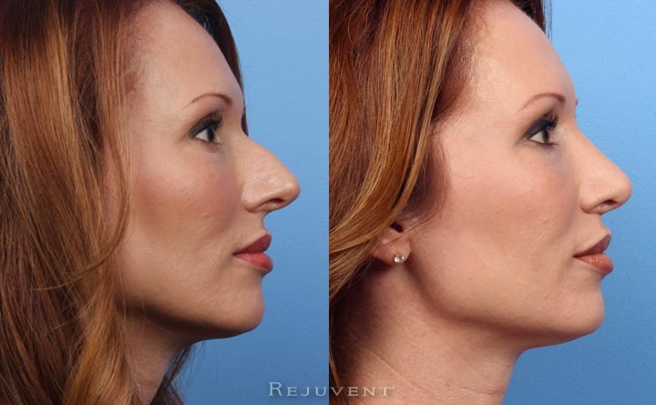 Beautiful Rhinoplasty Results