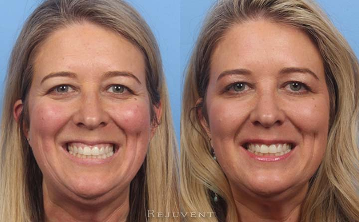 Too much gums in a gummy smile corrected with Botox