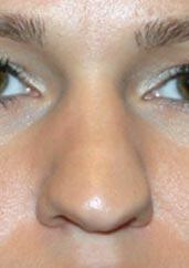 Bulbous Tip Nose