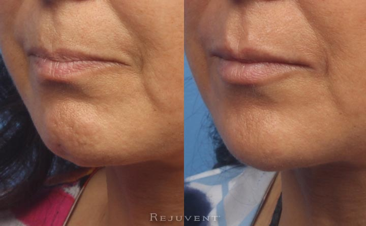 Fuller lips after filler and Wrinkle relaxer on chin