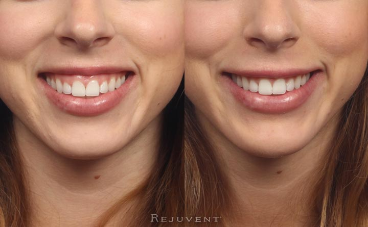 Gummy Smile Corrected with Botox