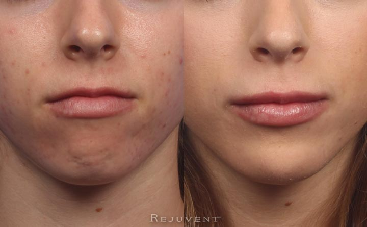 Lip Augmentation with Juvederm an Volbella