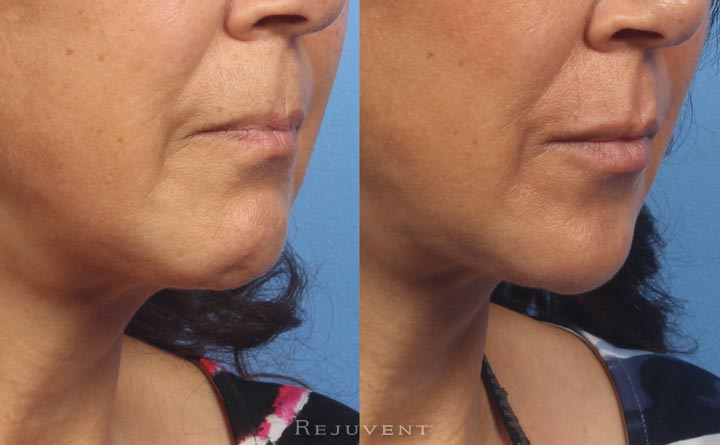 Lower Face Rejuvenation and Lip Augmentation