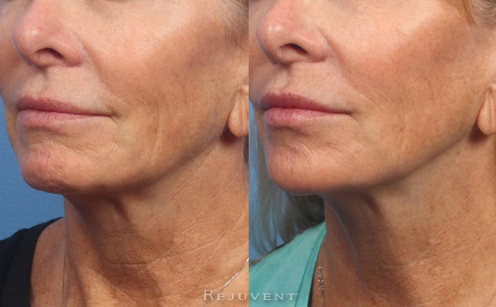 Lower face rejuvenation with dermal fillers