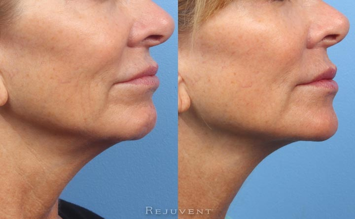 Rejuvenated lower face with dermal fillers