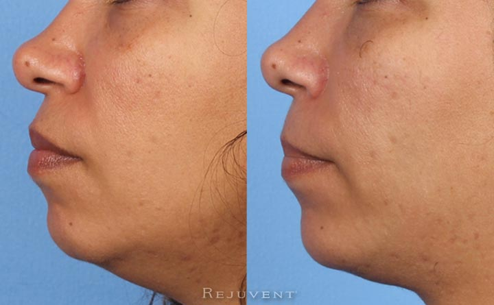 Improved Chin with Restylane Lyft