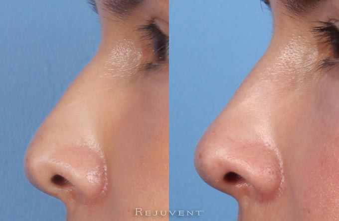 Non-Surgical nose job reduced hump with nose fillers