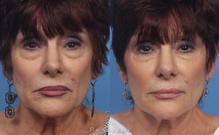 Rejuvenation liquid facelift senior patient