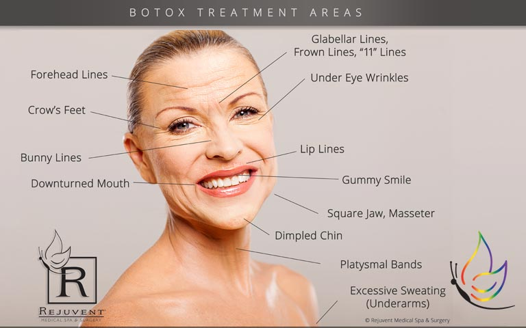 what are the botox treatment areas