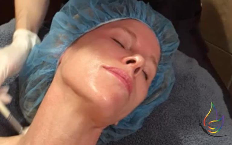 What a good regimen for chemical peels