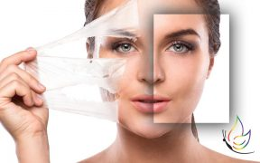 WHy are chemical peels essential to beautiful skin
