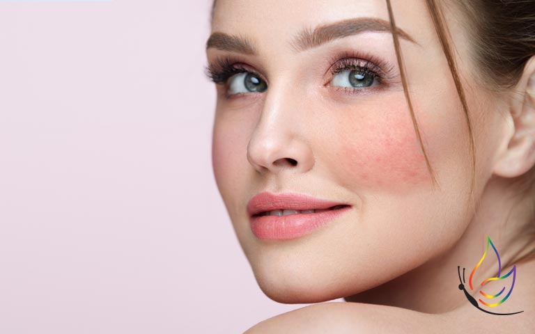 What to do for Rosacea