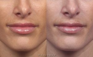 Lip filler correction