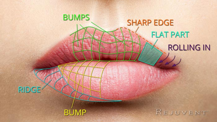 Areas for Lip filler