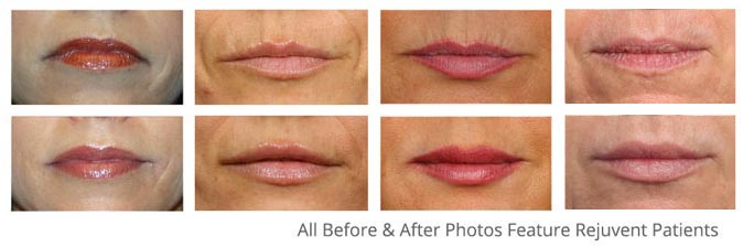 Lip Filler Special February 2018