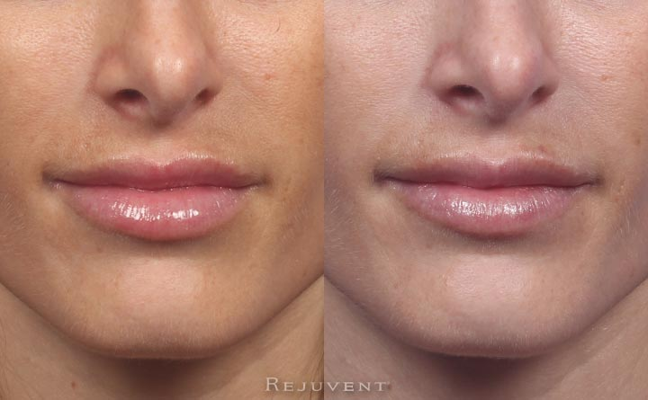 Filler correction too much dermal filler on lips