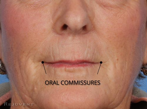 Oral Commissures changes with aging and age beautiful lips