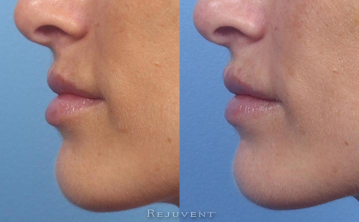 Lip filler correction - side view