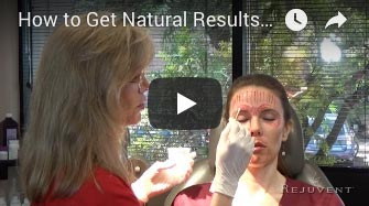 How to Get Natural Results with Botox