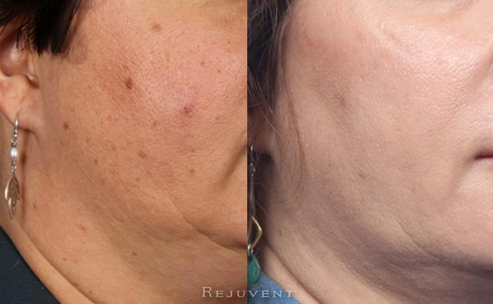Radiant aging skin after skin treatments