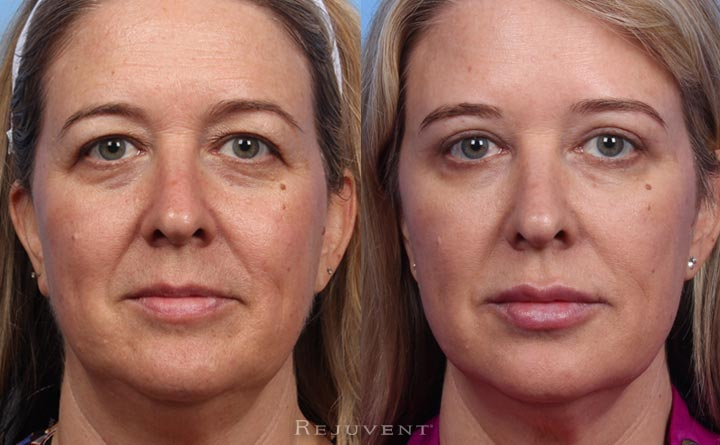 Before and after image Upper eyelid surgery and Non-surgical face lift