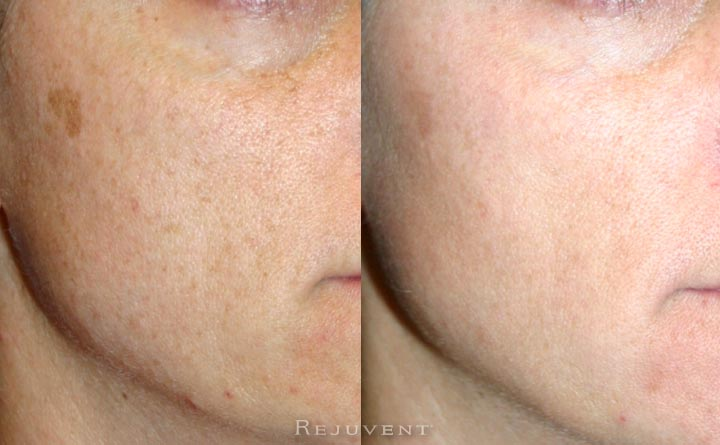 Better skin texture and less skin dryness