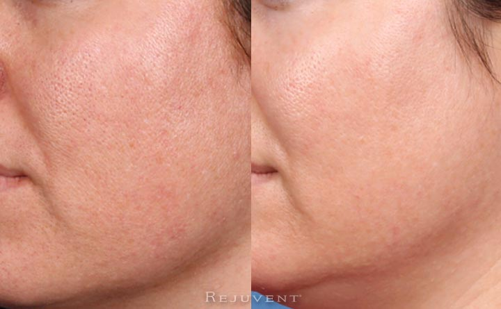 Smaller pores, better texture, less congested pores after treatment
