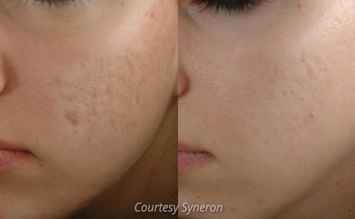 Reduce acne scars with eMatrix Fractional Resurfacing with RF