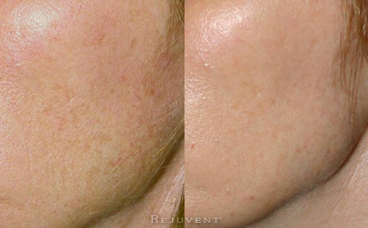 Great Chemical Peel Results