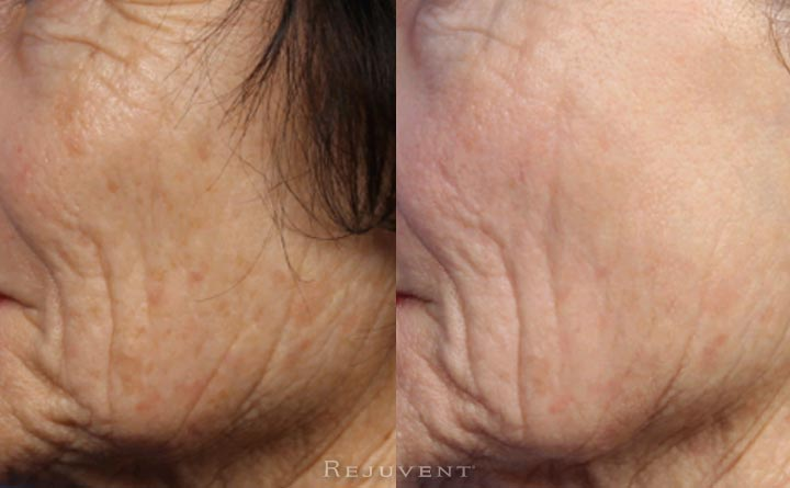 Levulan and IPL skin transformation