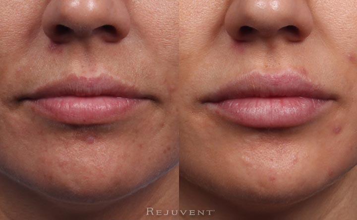 Beautiful Lip Augmentation at Rejuvent Scottsdale