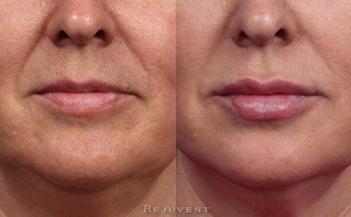 Lip closeup after Lip Augmentation with fillers