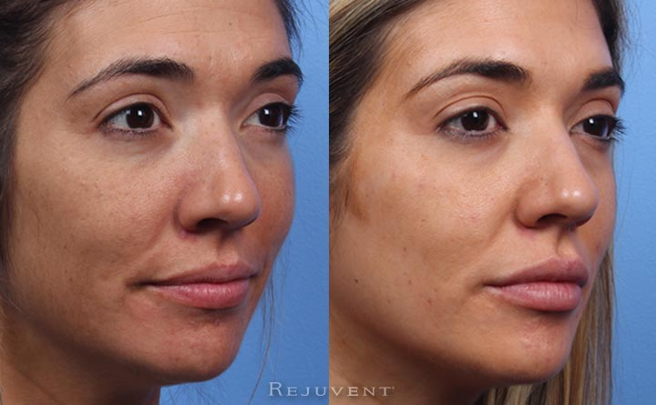Before and after lip fillers at Rejuvent Scottsdale