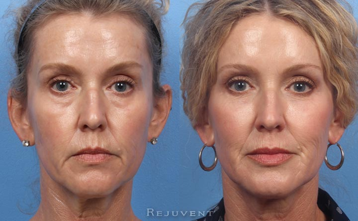 Liquid Facelift before and after transformation