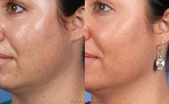 oily skin improvement before and after image