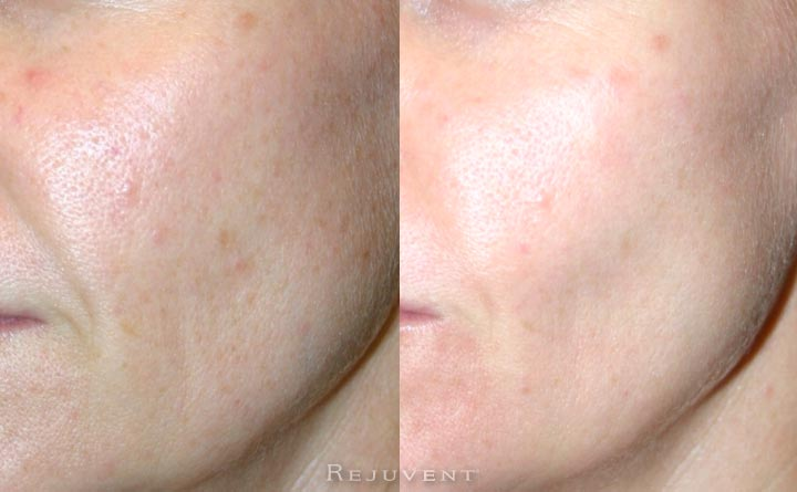 OIly Skin with large pores improvement