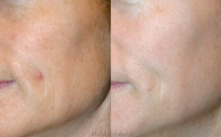 Brighter, more radiant, better texture after microdermabrasion and laser treatment