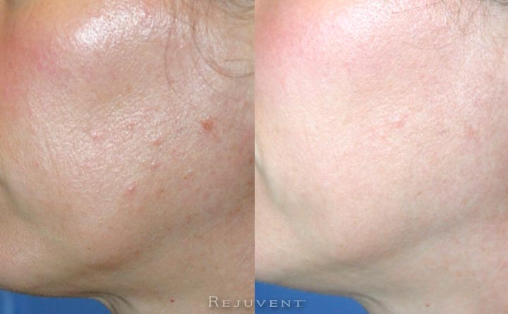 Tigther, Brighter, Better texture after skin treatments