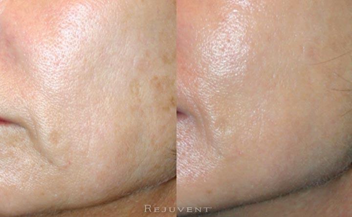 Skin Laxity Improvement